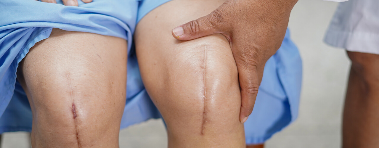 Total Joint Replacement Warner Robins & Macon, GA